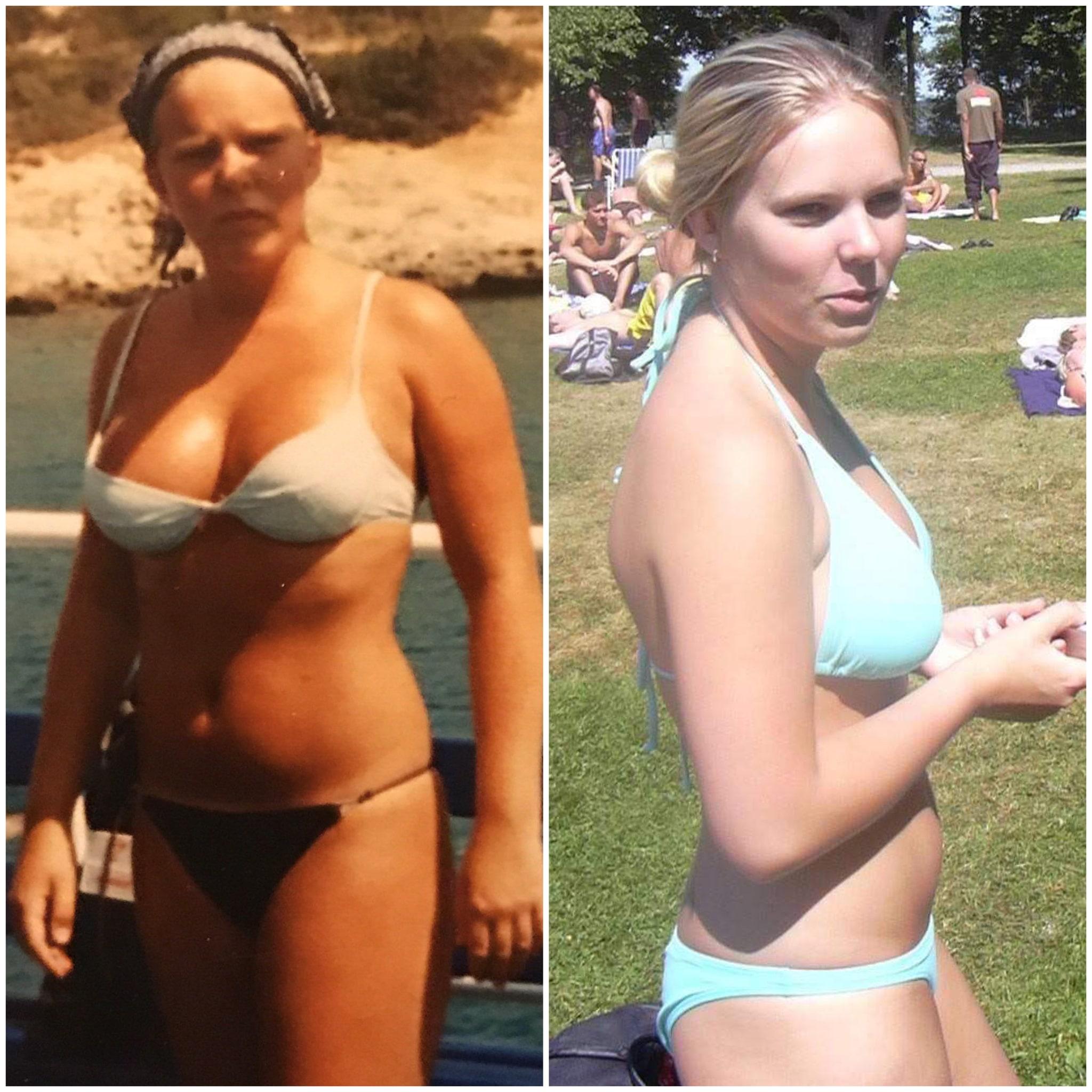 Bulimi bullemi ätstörningar bli frisk kräkas