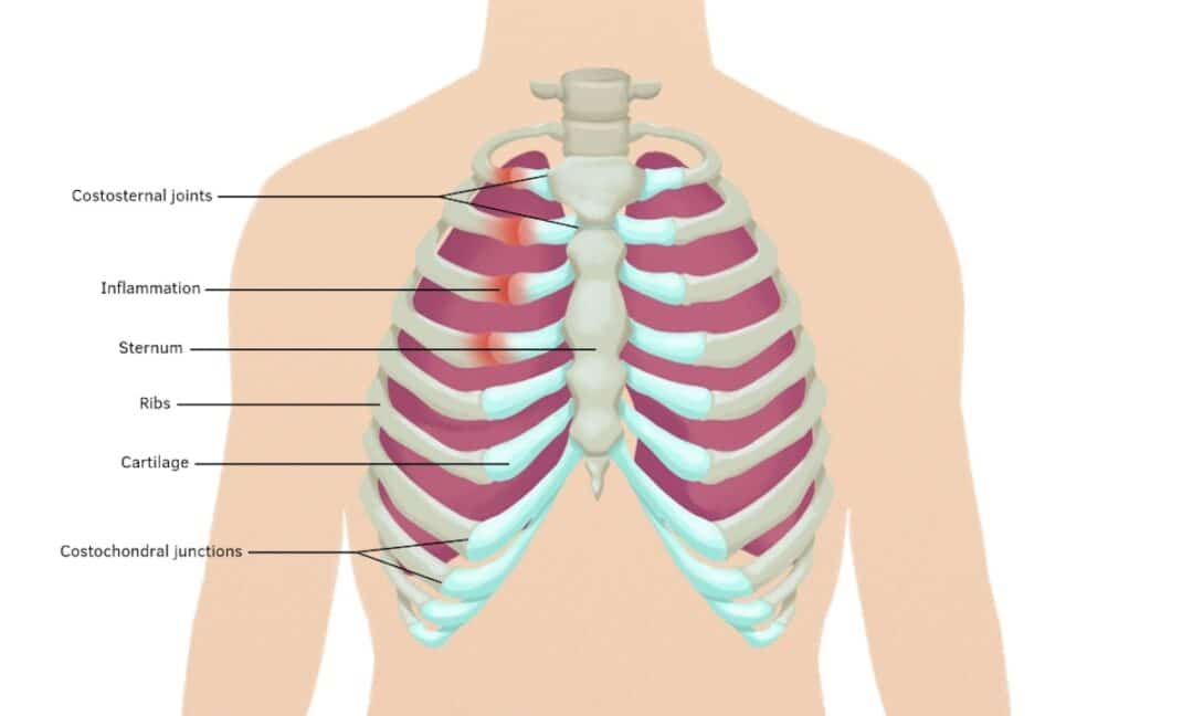Symptom kostokondrit behandling läkning inflammation i bröstmuskeln