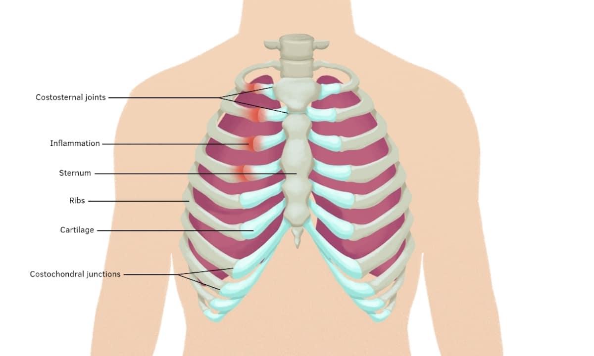 smärta i bröstbenet