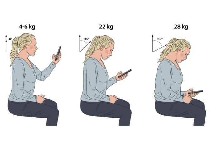 Mobilnacke hälsorisker med gamnacke